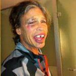 Asi quedo Steven Tyler tras accidente